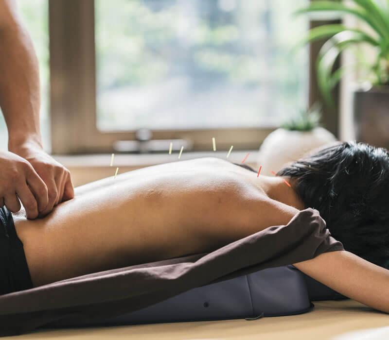 Acupuncture in Marin - Bridge Wellness